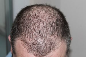 Avoid Hair Loss in Men Naturally